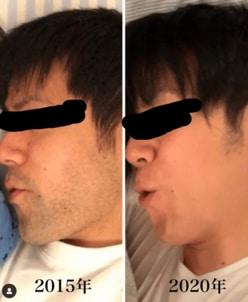 青木源太アナ、ヒゲ脱毛のビフォーアフター画像に反響「ビックリ」「別人」