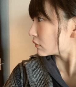 『あいのり』桃、鼻整形から1年半後のビフォーアフターを公開「やりたての時よりは……」