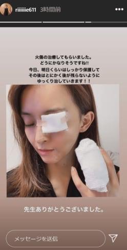 """田中理恵、「顔面やけど」で病院へ """"ユッキーナ炎上""""に続くW災難!!"""