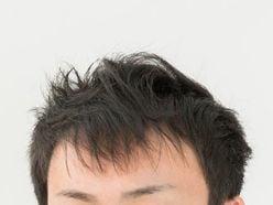ロッチ・中岡創一「ほんまに地獄!」宮迫博之の薄毛いじりに激怒