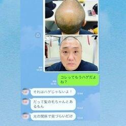 「ハゲに優しいミキティ」庄司智春が公開したLINE画像に男性ファン感動!