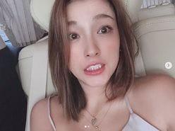 """安室奈美恵と同じ!? 木下優樹菜の""""顔面に異変""""発生"""